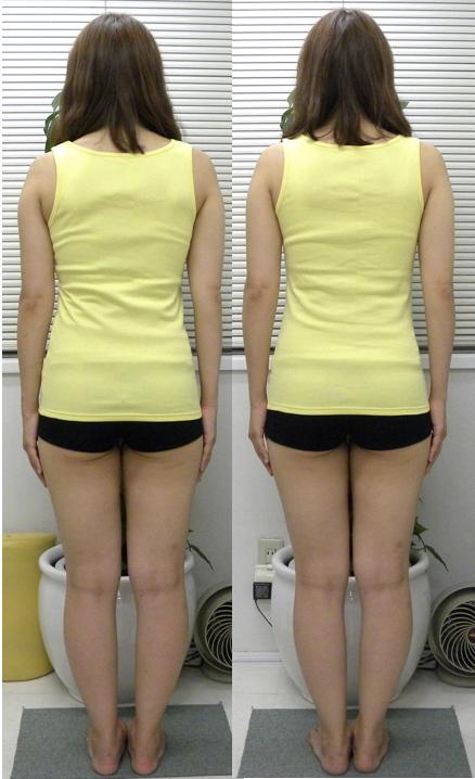 肋骨の幅・ウェストライン・姿勢・肩幅の改善(1回施術)