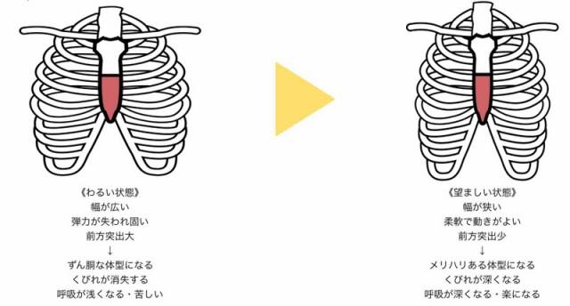 肋骨矯正の説明図