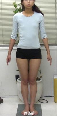 肋骨矯正の施術前