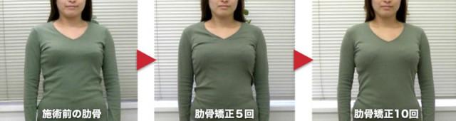 肋骨の幅・上半身のねじれ・首の伸び・脇腹のくびれが改善しています(10回施術)