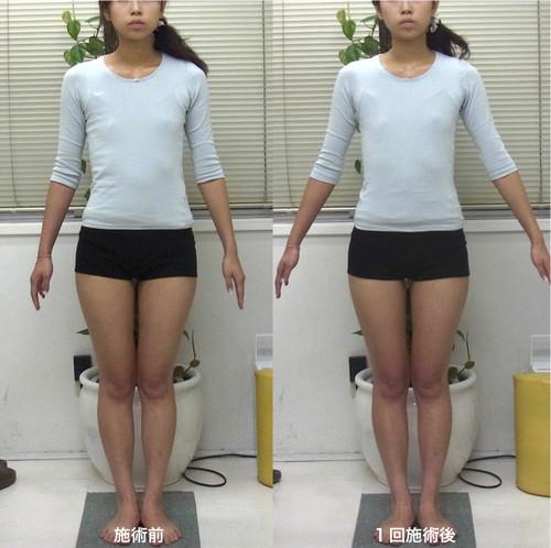 肋骨の幅・前方へのめくれ・胃のぽっこりが改善しています(1回施術)